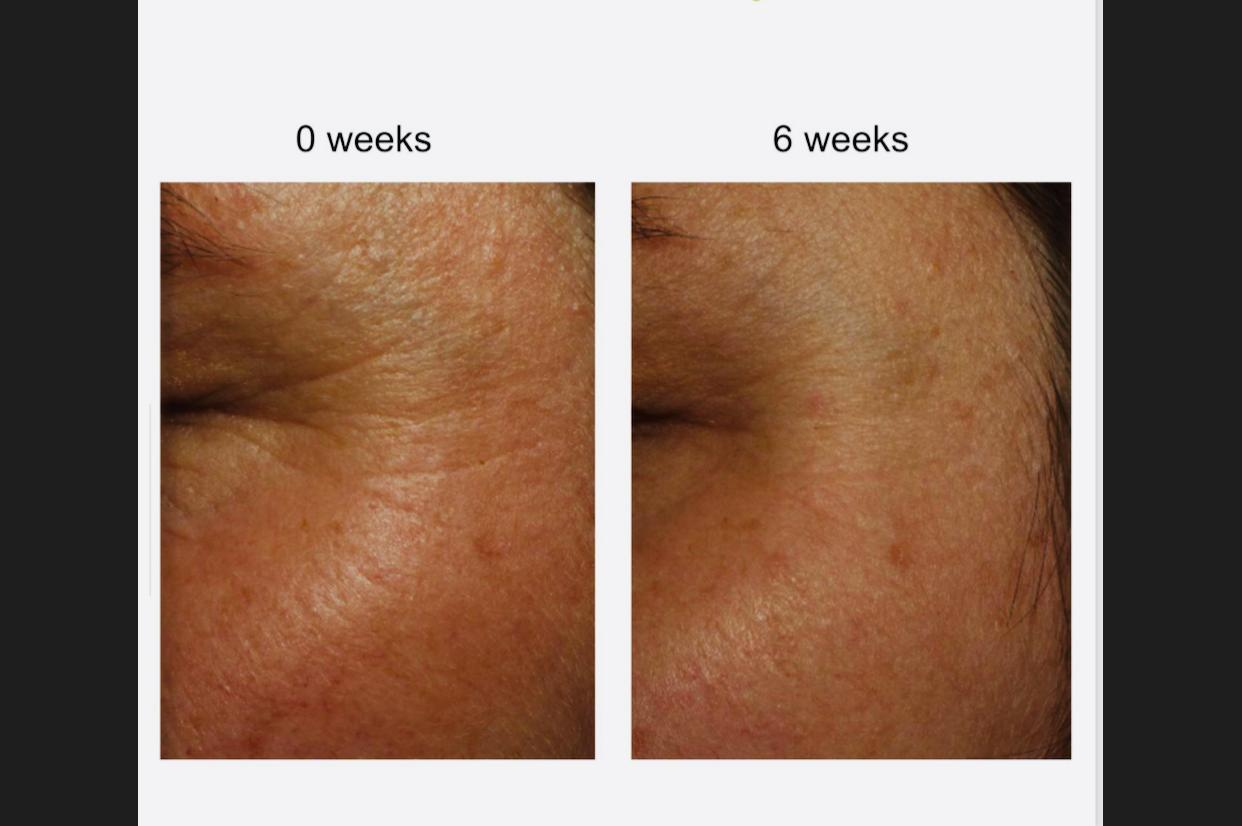 Wirkung des Dr. Gerny N°1 Serums nach sechs Wochen (c) Dr. Gerny